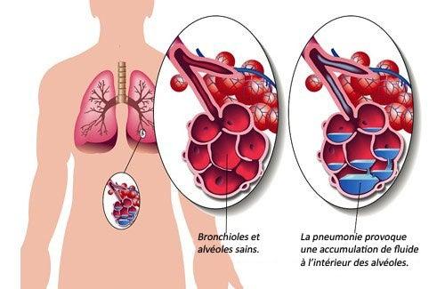 7 aliments pour soigner la pneumonie