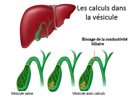 Quels sont les symptômes des calculs de la vésicule ?