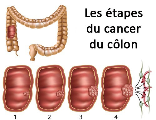 Les étapes du cancer du colon