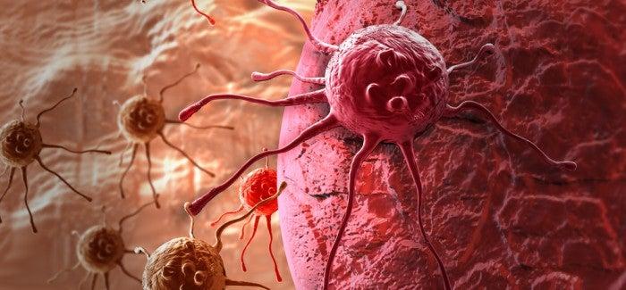 Les symptômes d'un possible cancer chez les femmes