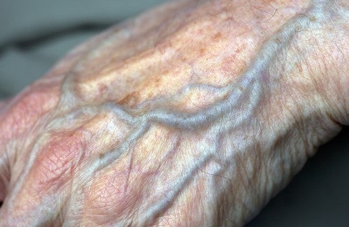 probleme de circulation sanguine dans les mains