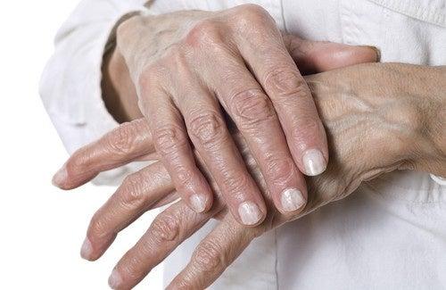 Remèdes naturels pour les gerçures des mains