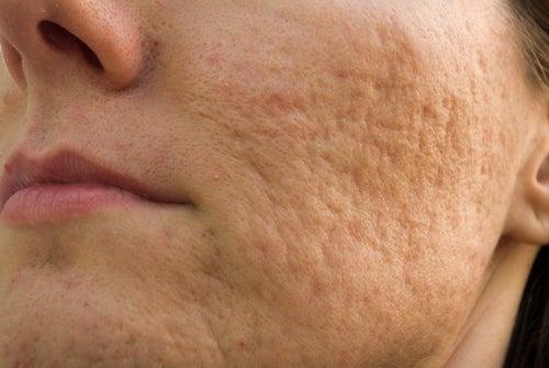 Marques d'acné