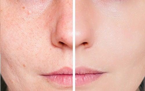 Cicatrices d'acné sur les fesses