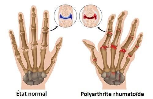 Traitements naturels pour soigner l'arthrite