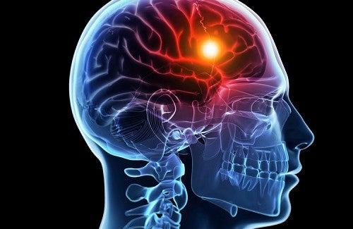 Comment prévenir un accident vasculaire cérébral ?