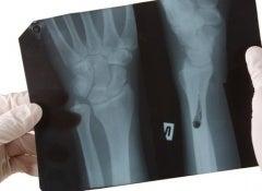 Les problèmes des ongles et leur traitement