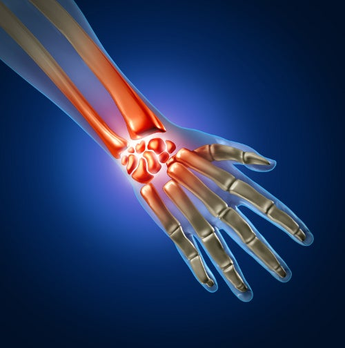 Le syndrome du canal carpien est souvent traité avec la chirurgie.