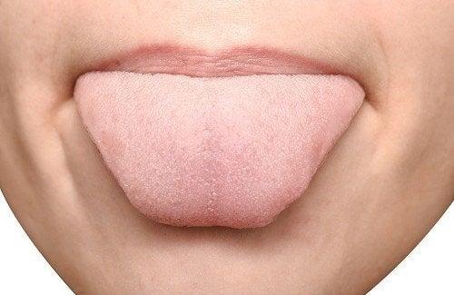 langue fendue et douloureuse