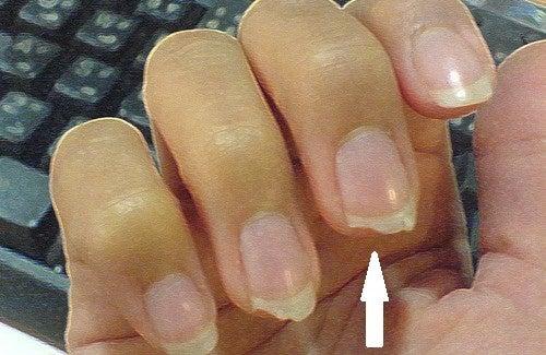 Le traitement laser onikhomikozov des ongles