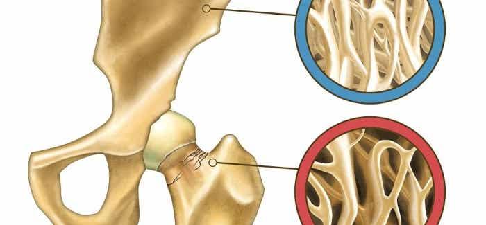 Comment prévenir l'ostéoporose naturellement