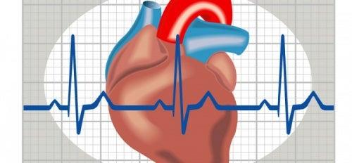 Comment reconnaître et prévenir la tachycardie ?