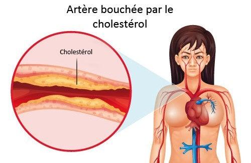 Ce qu'il faut faire pour contrôler le cholestérol