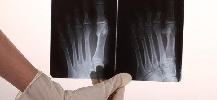 Douleur osseuse : causes et remèdes naturels
