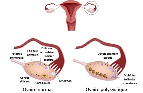 Le syndrome des ovaires polykystiques