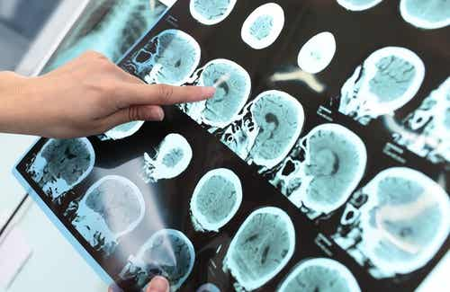 7 habitudes pour prévenir la maladie d'Alzheimer