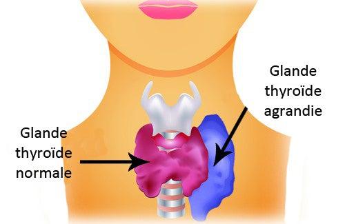 Symptômes et traitements de l'hyperthyroïdie chez les femmes
