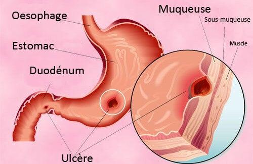 Ulcère gastro-duodénal : les traitements naturels