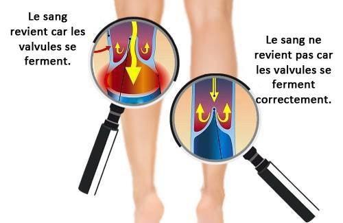 Comment améliorer la circulation des bras et des jambes