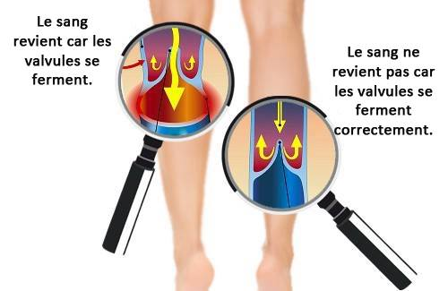 probleme circulation sanguine symptomes