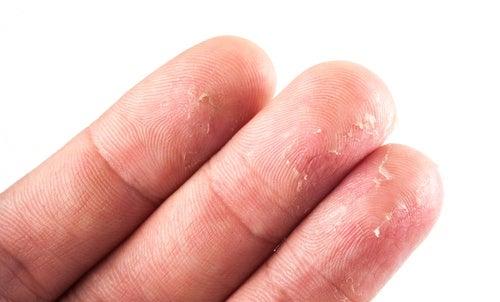 Les signes et les traitements de leczéma sur les paumes