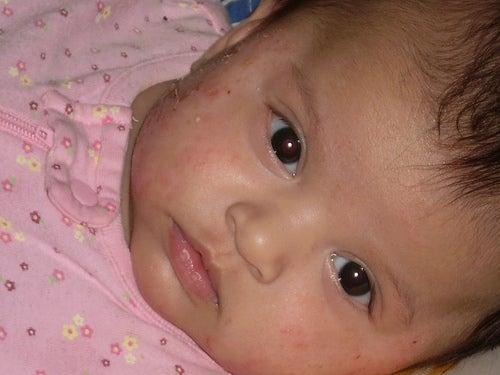 Atopitchesky la dermatite chez les petits jusquà un an