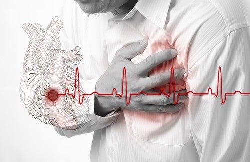Savez-vous reconnaître les symptômes d'un infarctus ?