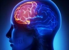 La soude au traitement du psoriasis les rappels