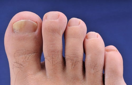 champignons des ongles de pieds