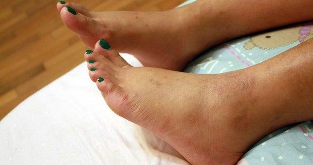 Comment éviter une inflammation des chevilles ?