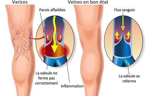 La desaparición de la vena varicosa en el pie lipetsk