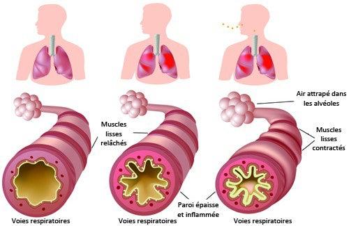 Que faire en cas d'asthme chronique et d'allergies ?