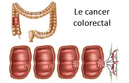 Comment reconnaître et prévenir le cancer colorectal ?