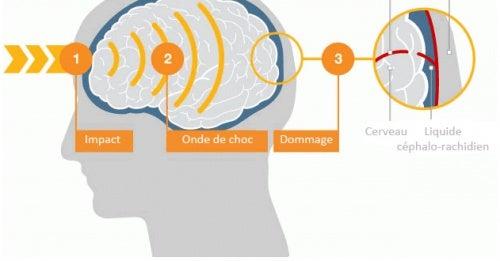 Quel impact ont les coups sur la tête ?