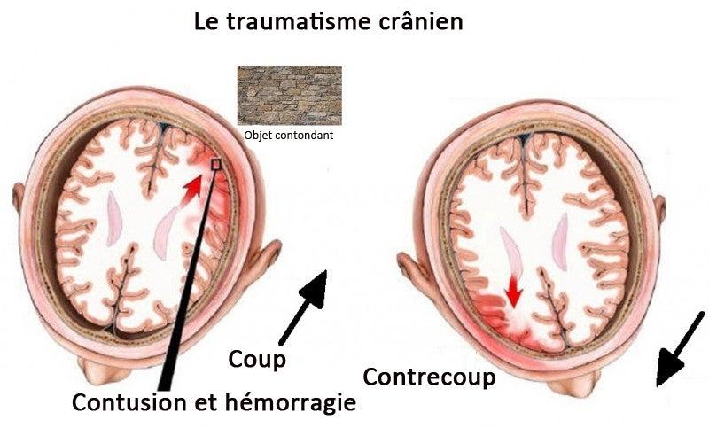 impact ont les coups sur la tête : traumatisme cranien