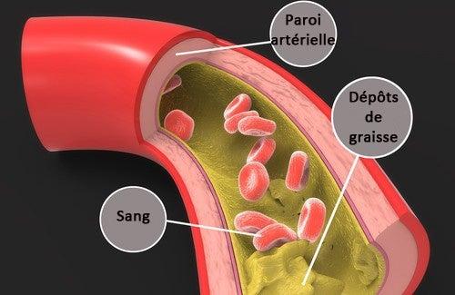 Remèdes maison pour réduire le cholestérol