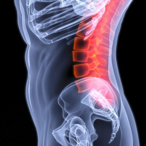 National la méthode pour cervical osteokhondroza