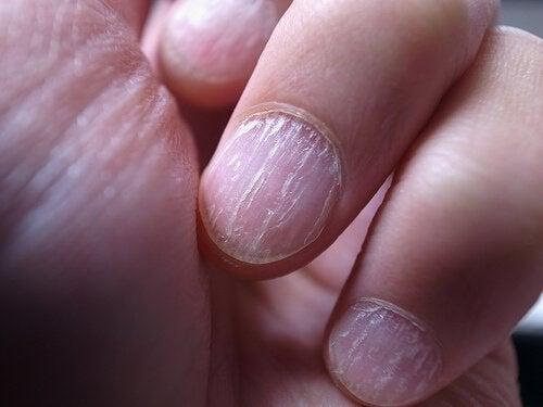 Remèdes maison contre les champignons des ongles