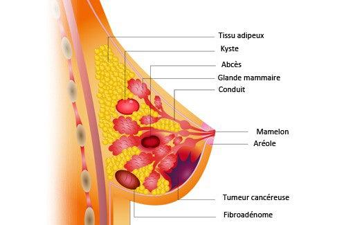 Les aliments qui nous aident à prévenir le cancer