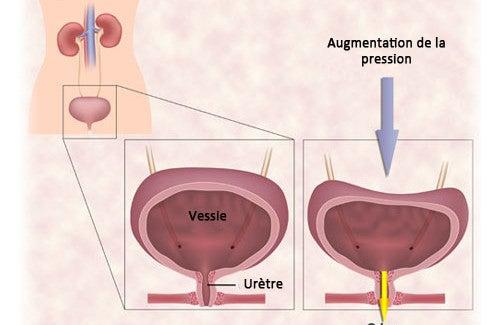 Les exercices contre l'incontinence urinaire chez les femmes