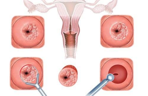 Symptômes et traitement de l'érosion du col utérin