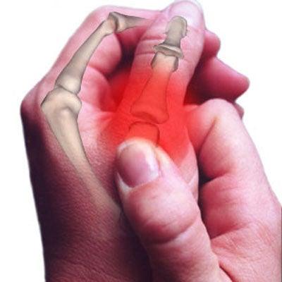 Les douleurs aux mains et aux poignets quoi sont elles for Douleur interieur du pied