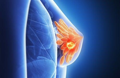 Peut-on prédire le cancer du sein ?