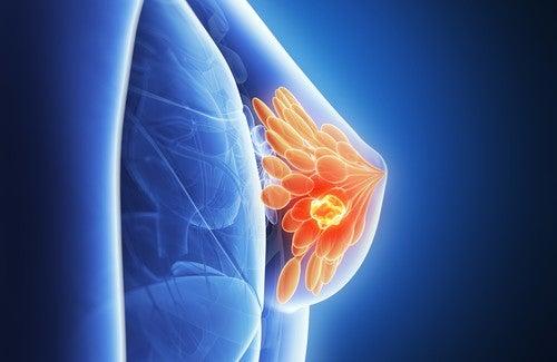 Pouvons-nous prédire le cancer du sein ?