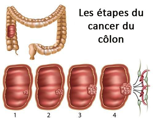 le cancer du côlon