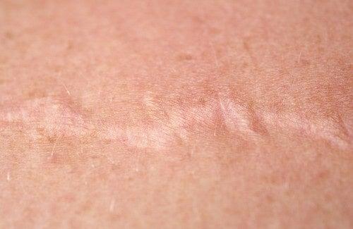 Comment utiliser l'oignon pour traiter les cicatrices