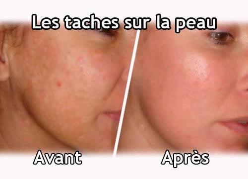 Forums Allodocteurs France 5 - peau de mes seins qui ple