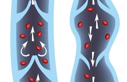 Traitement des varices : les 10 meilleurs remèdes