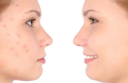 Un traitement contre l'acné fait maison