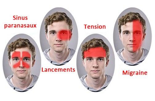 Un nouveau traitement efficace contre la migraine découvert !